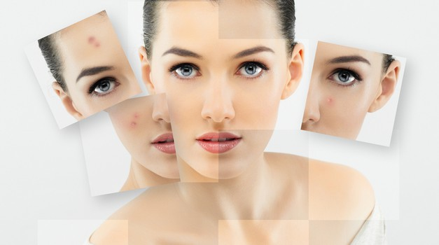 Očisti svojo kožo aken – enkrat za vselej! (foto: shutterstock)