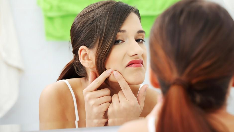 Aknasta koža - vzroki, nasveti in nega! (foto: shutterstock)