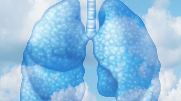 Brez sape za pljučno hipertenzijo (foto: shutterstock)