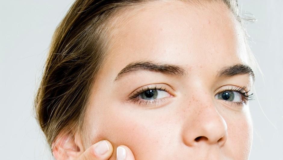 6 nenavadnih nasvetov za preprečevanje aken (foto: profimedia)