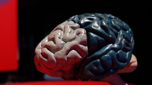 O možganih: Na srečo znamo tudi pozabljati! (foto: Goran Antley)