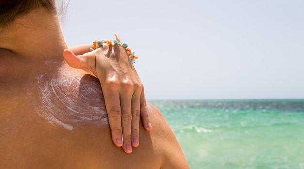 Domača limonina obloga proti sončnim opeklinam (foto: Shutterstock)