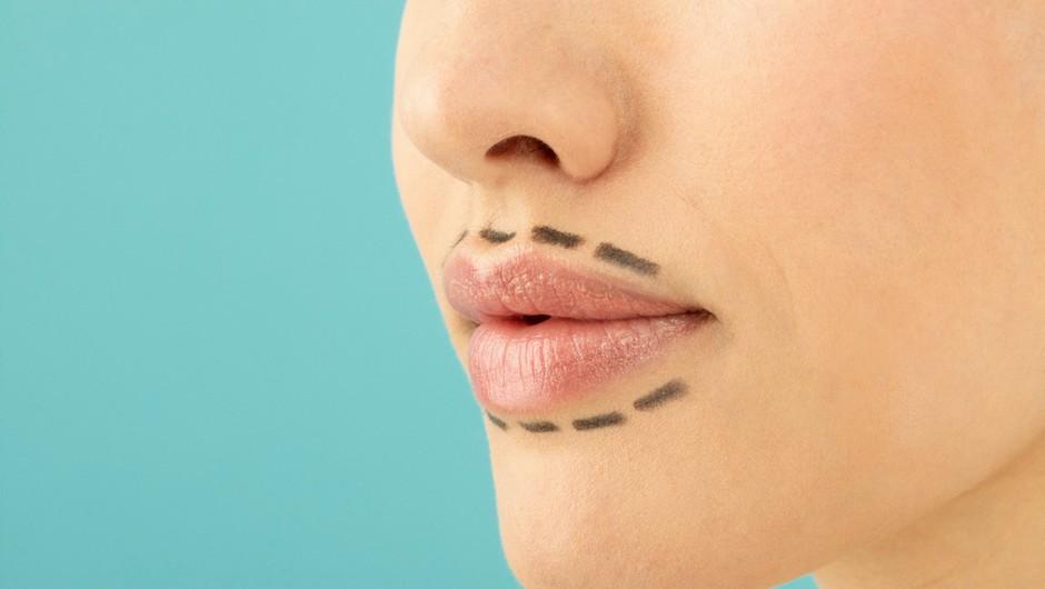 Ta lepotni popravek estetska kirurga absolutno odsvetujeta! (foto: Profimedia)