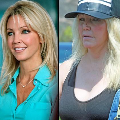 FOTO: Najbolj spremenjeni obrazi Hollywooda