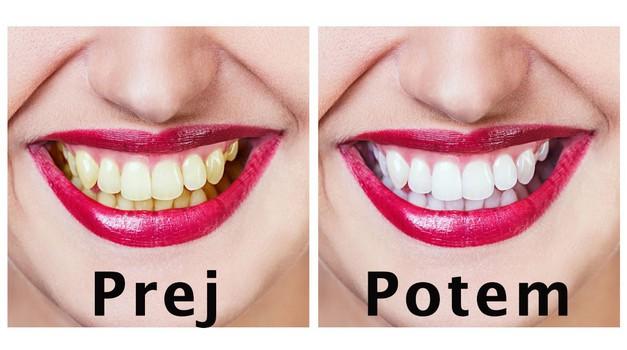 Top naravna maska za lepše in bolj zdrave zobe (foto: Profimedia)
