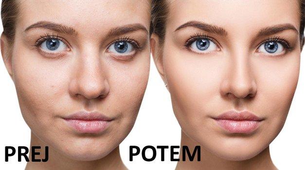 Udeleži se brezplačnega testiranja kože in premagaj akne! (foto: Profimedia)