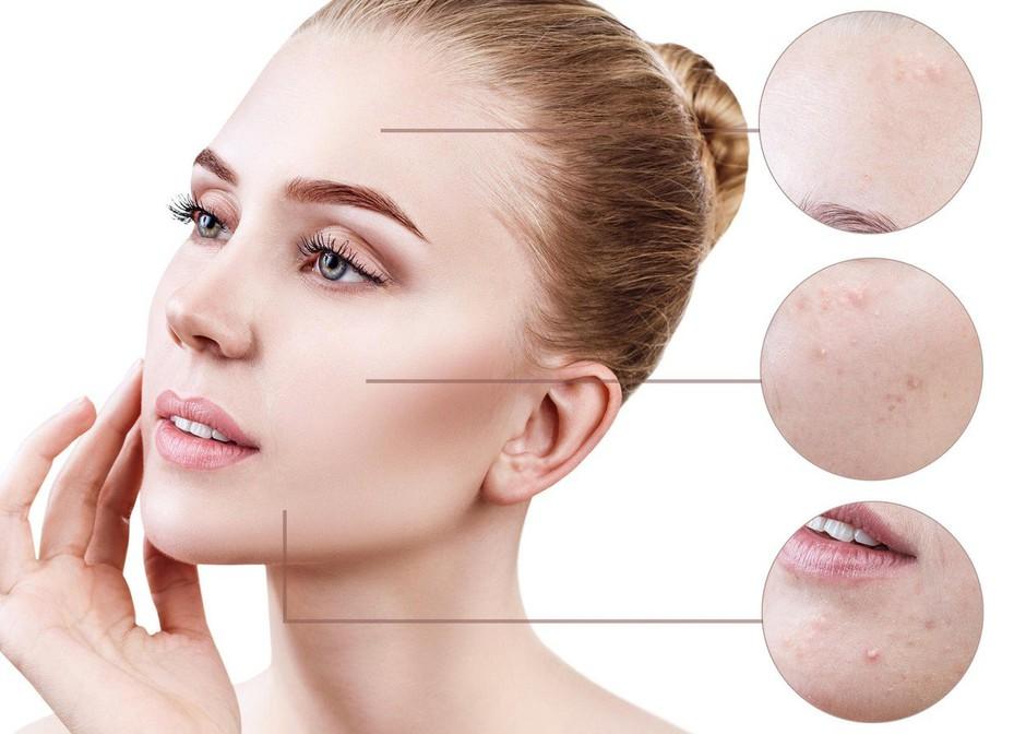 Področje aken na obrazu razkriva marsikaj o tvojem zdravju (foto: Profimedia)